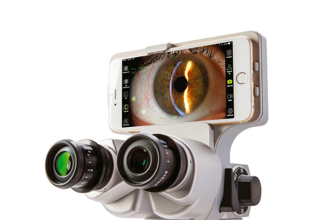 Marco ion Imaging. Anterior Segment Imaging System